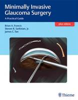 Minimally Invasive Glaucoma Surgery: A Practical Guide